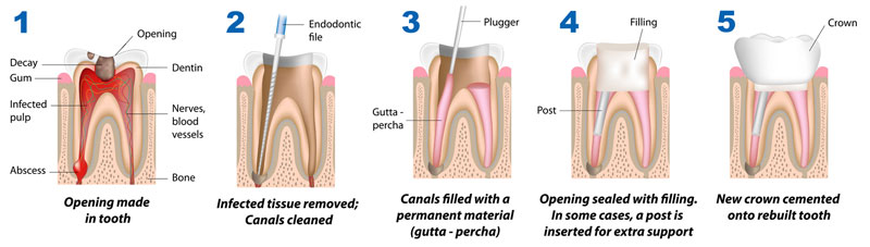 root canal treatment at Aspen Dental Care, Bangalore