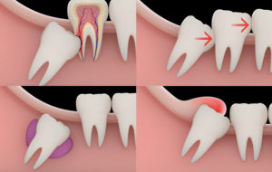 wisdom tooth extraction at Aspen Dental Care