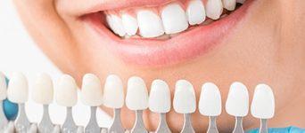 dental veneers aspen dental care