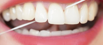 teeth cleaning aspen dental care